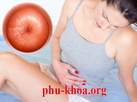 Bệnh viêm cổ tử cung có nguy hiểm không ?
