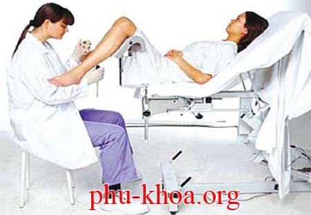 Cách khám âm đạo phụ nữ
