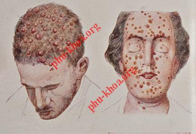 Hình ảnh bệnh giang mai ở nam giới và nữ giới
