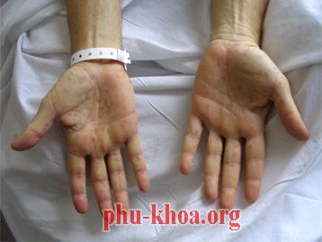 Phác đồ điều trị bệnh giang mai cụ thể và mới nhất